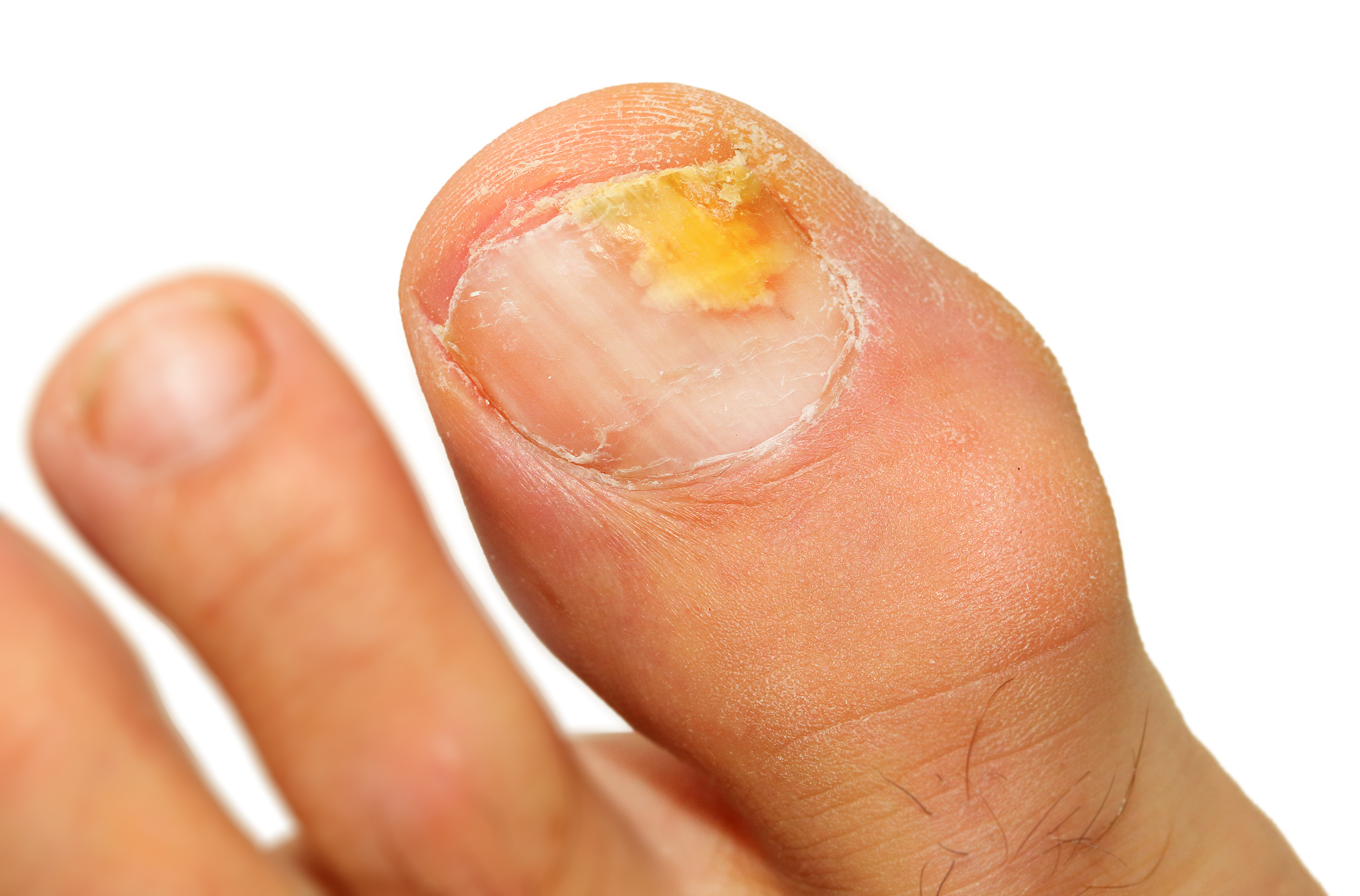Fungal Foot Infections - The Institute of Chiropodists and ...